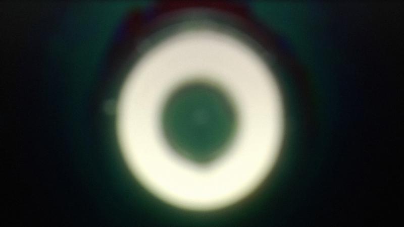Girardet Mueller Eye 2