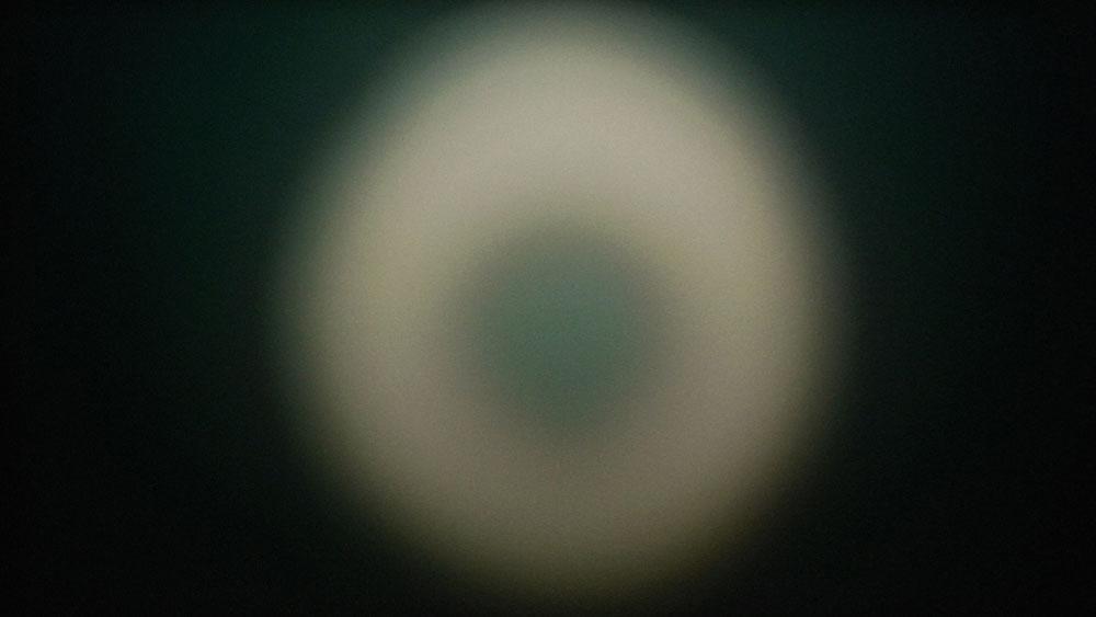 Girardet Mueller Eye 1